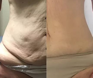 Contour Light Therapy in Greer SC Before and After